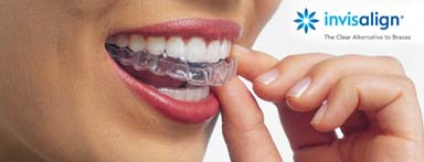 Invisalign Dentist Mississuaga Bridges Implants Teeth Whitening Cosmetic Tooth Fillings Extractions Root Canals Crowns Veneers