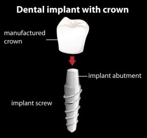 Dental Implants Mississuaga Dentist Dentures Teeth Whitening Cosmetic Tooth Fillings Extractions Root Canals Invisalign Crowns Bridges Veneers