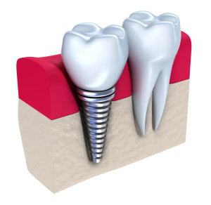 Dental Implants Mississuaga Dentist Dentures Teeth Whitening Cosmetic Tooth Fillings Extractions Root Canals Invisalign Crowns Bridges Veneers M