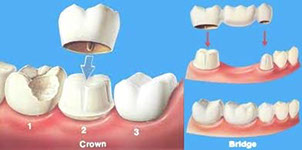 Crowns Bridges Mississuaga Dentist Teeth Whitening Dentures Invisalign Cosmetic Tooth Fillings Extractions Root Canals Implants Veneers Mouth Gu