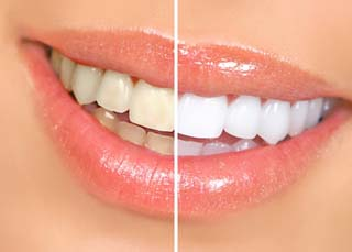 Teeth Whitening Mississuaga Dentist Dentures Invisalign Cosmetic Tooth Fillings Extractions Root Canals Implants Crowns Bridges Veneers Mouth Gu